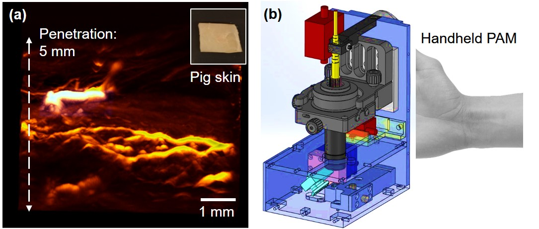 Handheld photoacoustic microscopy for human skin imaging