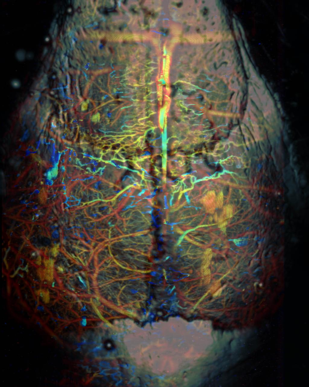 Photoacoustic imaging of mouse brain with skull intact