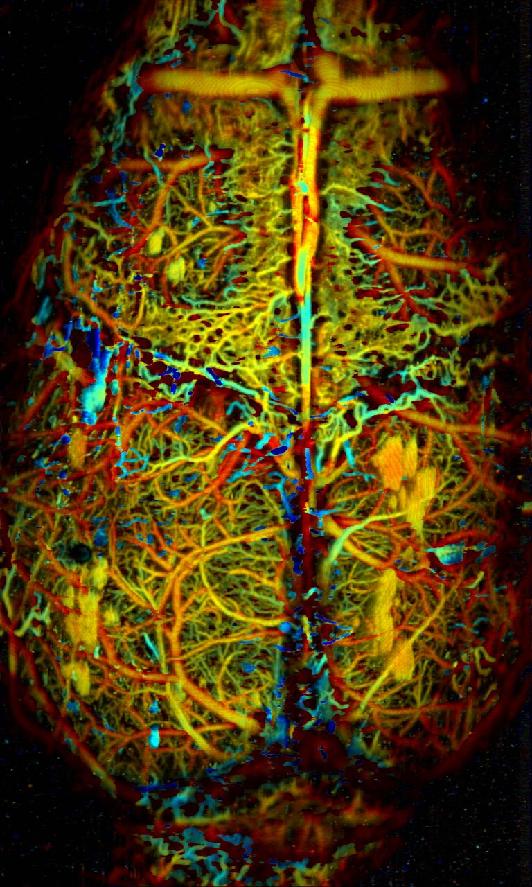 Photoacoustic microscopy of whole-cortical vasculature